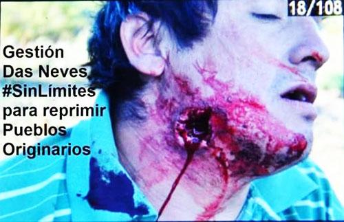 MapucheHeridoenelcuello.500-A